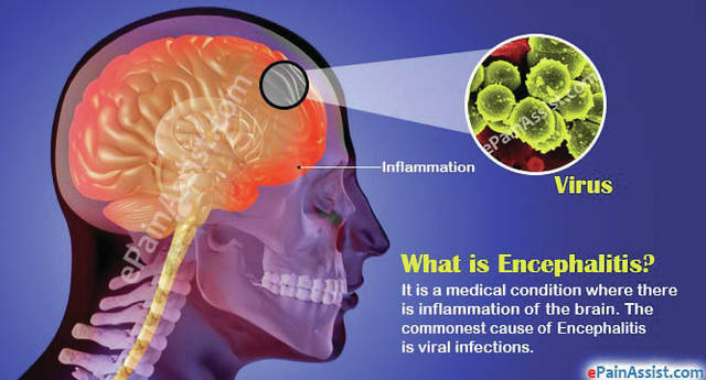 This infographic explains encephalitis.